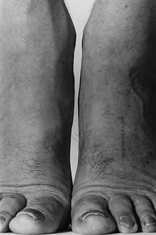 John Coplans, Feet, Frontal, 1984. © The John Coplans Trust.